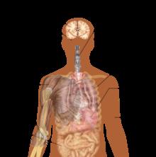 2014 Ebola Hemorrhagic Fever